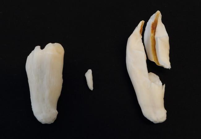 Gezogene Zähne